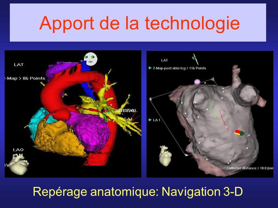 Repérage anatomique: Navigation 3-D Apport de la technologie