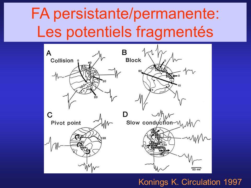 Konings K. Circulation 1997 FA persistante/permanente: Les potentiels fragmentés