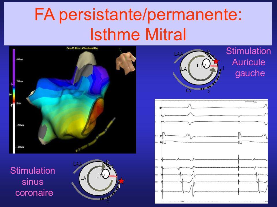 Stimulation sinus coronaire FA persistante/permanente: Isthme Mitral Stimulation Auricule gauche