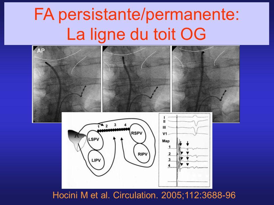 Hocini M et al. Circulation. 2005;112:3688-96 FA persistante/permanente: La ligne du toit OG