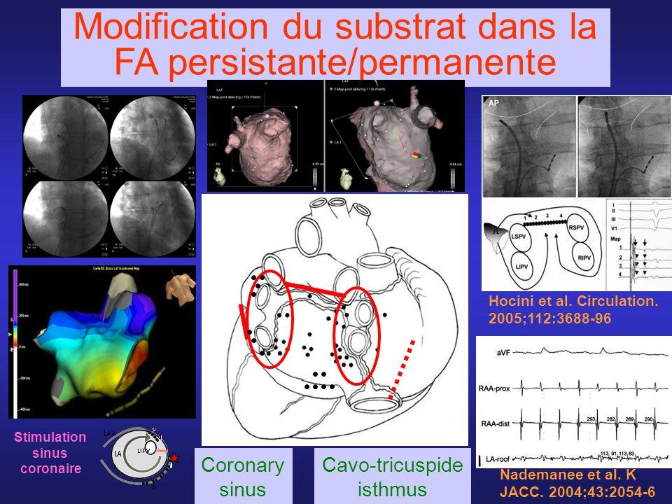 Modification du substrat dans la FA persistante/permanente Stimulation sinus coronaire Hocini et al. Circulation. 2005;112:3688-96 Nademanee et al. K