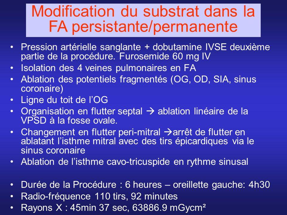 Pression artérielle sanglante + dobutamine IVSE deuxième partie de la procédure. Furosemide 60 mg IV Isolation des 4 veines pulmonaires en FA Ablation