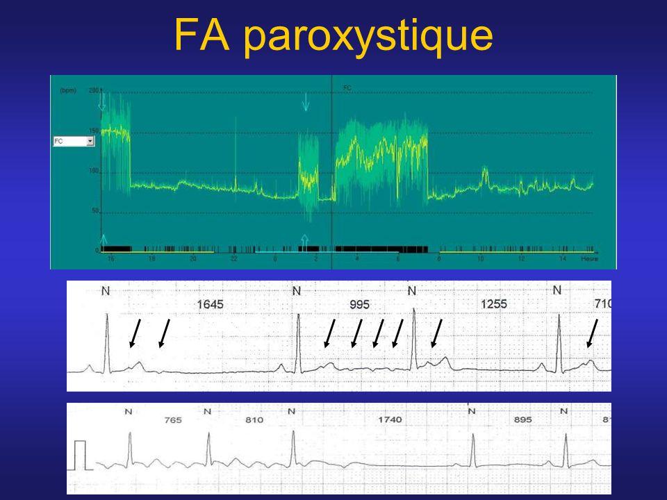 200ms I II V1 Abl-d Abl-p d p CS Sequence change during septal ablation