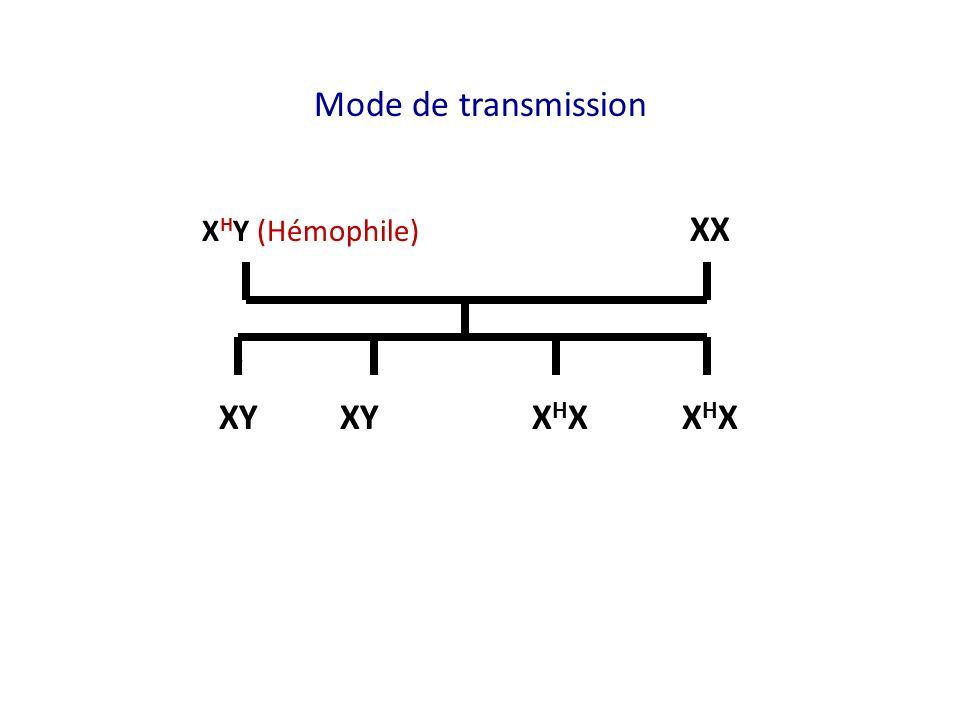 Mode de transmission X H Y (Hémophile) XX XY XY X H XX H X
