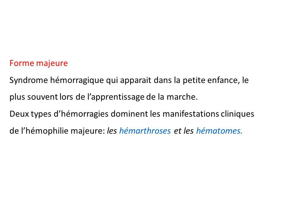 Forme majeure Syndrome hémorragique qui apparait dans la petite enfance, le plus souvent lors de lapprentissage de la marche. Deux types dhémorragies