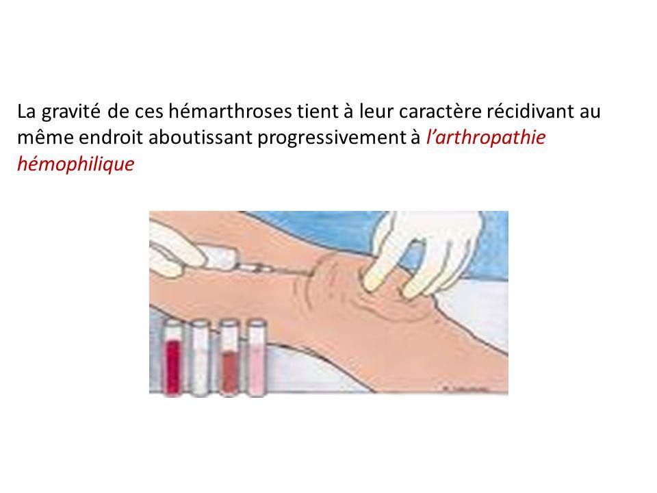 La gravité de ces hémarthroses tient à leur caractère récidivant au même endroit aboutissant progressivement à larthropathie hémophilique