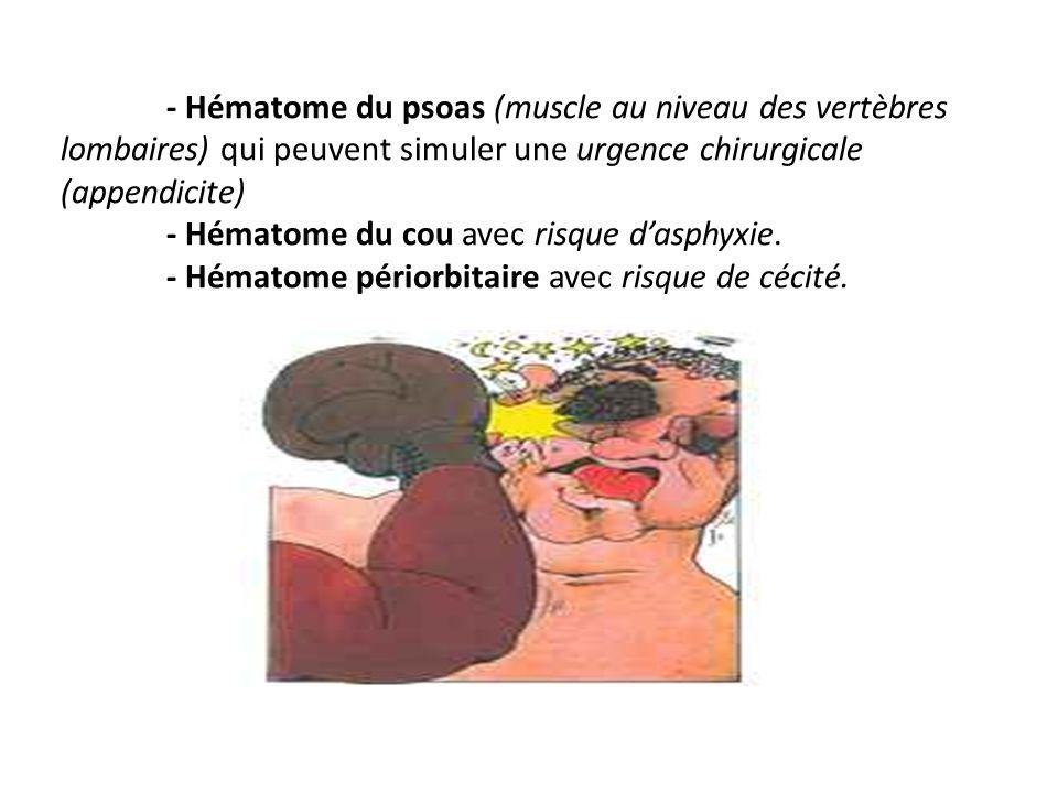 - Hématome du psoas (muscle au niveau des vertèbres lombaires) qui peuvent simuler une urgence chirurgicale (appendicite) - Hématome du cou avec risque dasphyxie.