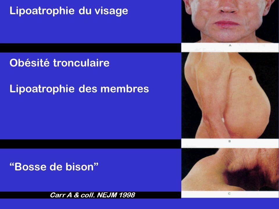 Lipoatrophie du visage Obésité tronculaire Lipoatrophie des membres Bosse de bison Carr A & coll. NEJM 1998