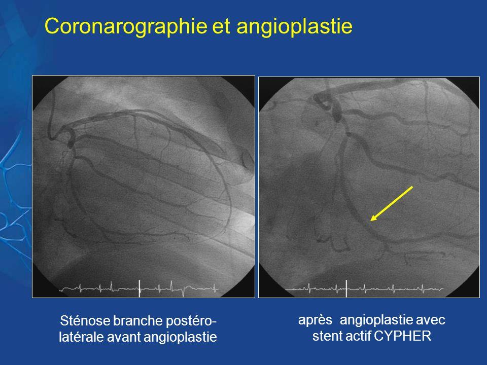 Sténose branche postéro- latérale avant angioplastie après angioplastie avec stent actif CYPHER Coronarographie et angioplastie