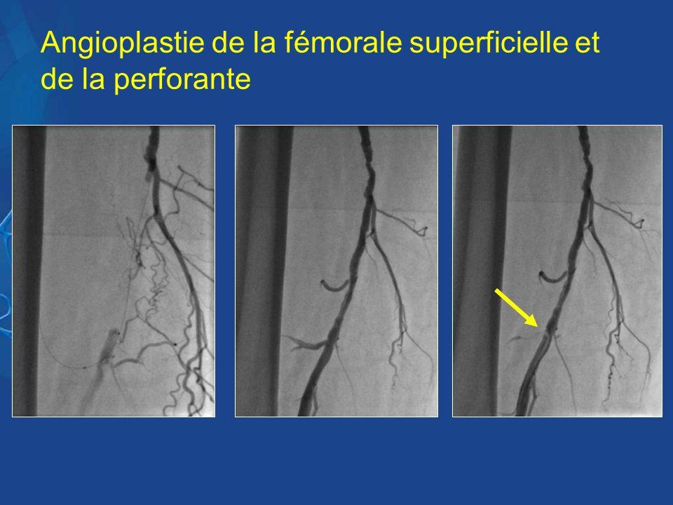 Angioplastie de la fémorale superficielle et de la perforante