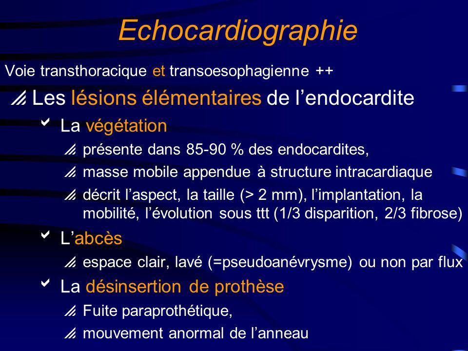 Echocardiographie Les lésions destructrices associées capotage de la sigmoïde aortique rupture dun cordage mitral perforation valvulaire fistulisation dun abcès vers une autre cavité Le retentissement hémodynamique Quantification des fuites ++ et des obstructions La cardiopathie sous jacente Aortique (bicuspidie, Rao…), mitrale (PVM, valve dystrophique, …) Cardiomyopathie obstructive, Cardiopathies congénitales, Prothèse valvulaire