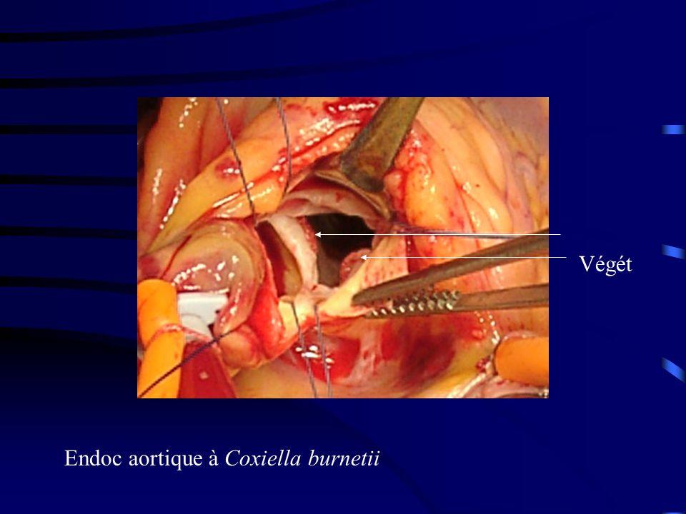 Endocardite aortique sur bicuspidie calcifiée