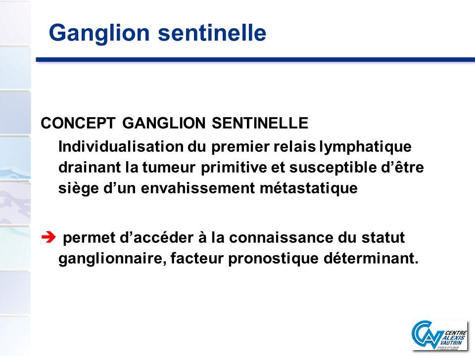 Ganglion sentinelle CONCEPT GANGLION SENTINELLE Individualisation du premier relais lymphatique drainant la tumeur primitive et susceptible dêtre sièg