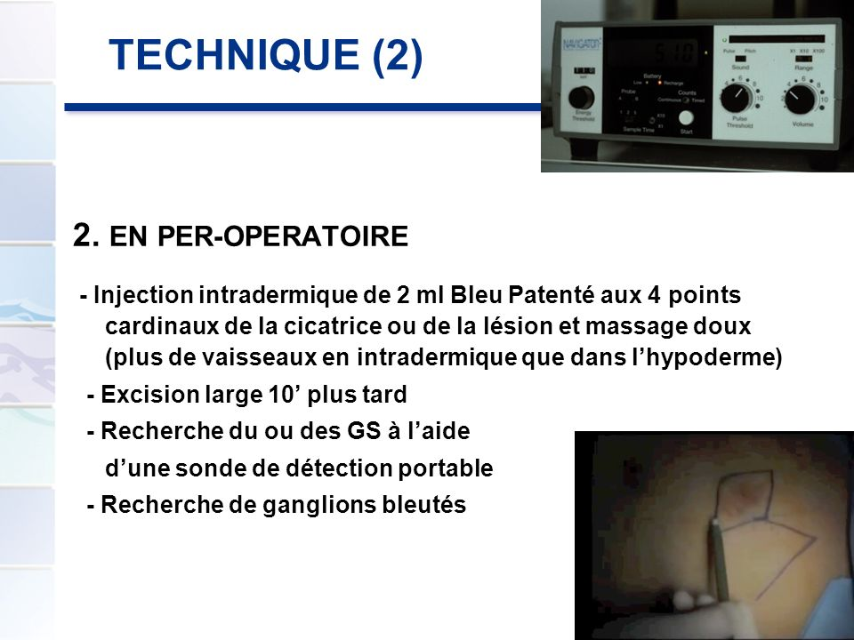 TECHNIQUE (2) 2. EN PER-OPERATOIRE - Injection intradermique de 2 ml Bleu Patenté aux 4 points cardinaux de la cicatrice ou de la lésion et massage do