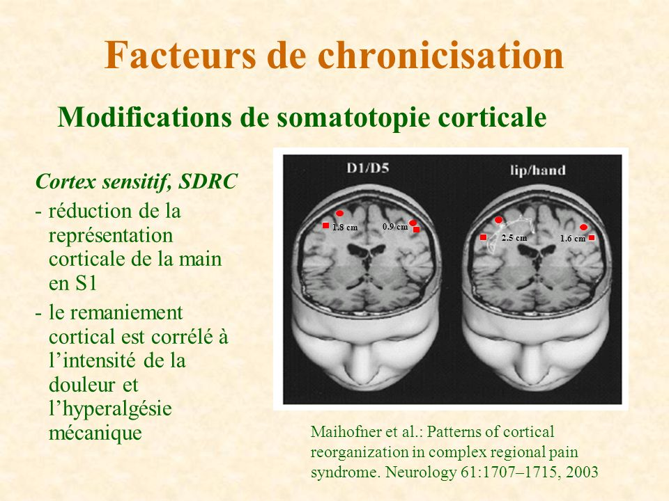 Modifications de somatotopie corticale Facteurs de chronicisation Cortex sensitif, SDRC -réduction de la représentation corticale de la main en S1 -le