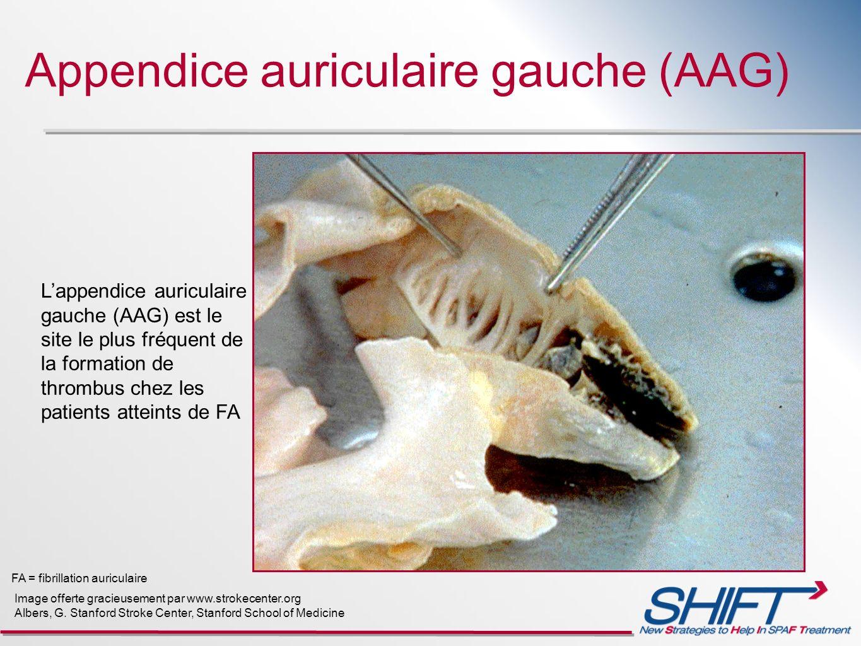 Appendice auriculaire gauche (AAG) Lappendice auriculaire gauche (AAG) est le site le plus fréquent de la formation de thrombus chez les patients atte