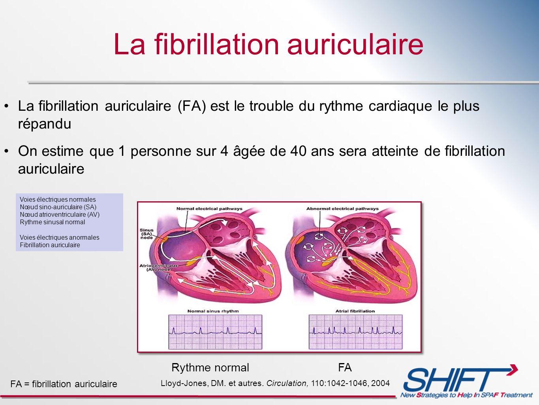 La fibrillation auriculaire La fibrillation auriculaire (FA) est le trouble du rythme cardiaque le plus répandu On estime que 1 personne sur 4 âgée de