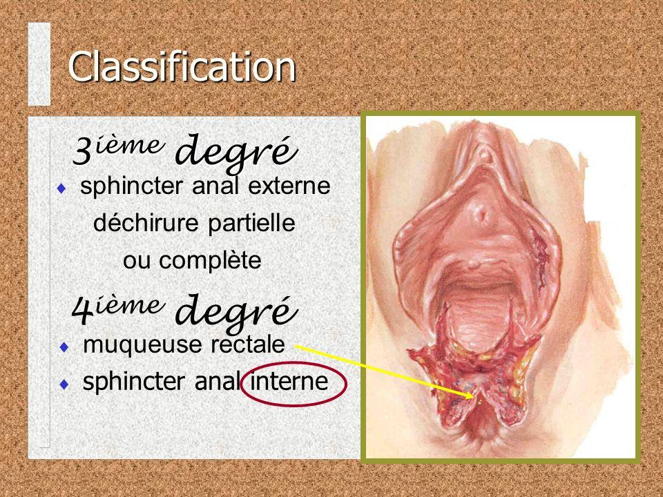 Classification 3 ième degré sphincter anal externe déchirure partielle ou complète 4 ième degré muqueuse rectale sphincter anal interne