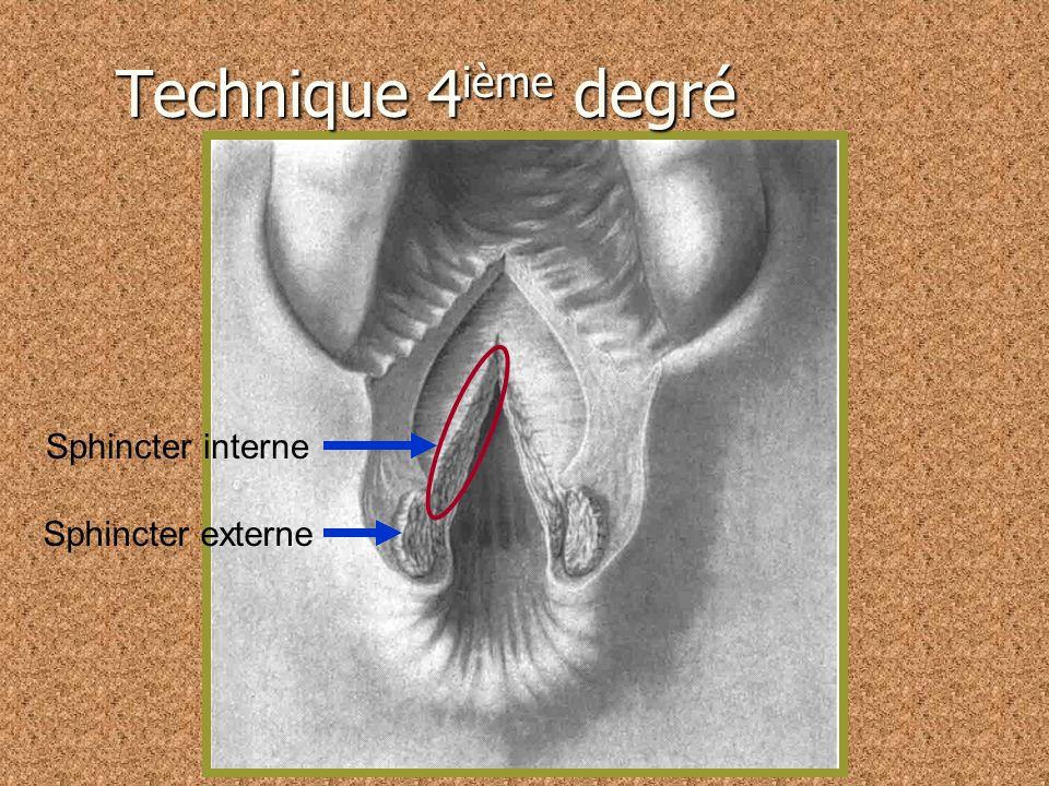 Sphincter interne Sphincter externe Technique 4 ième degré