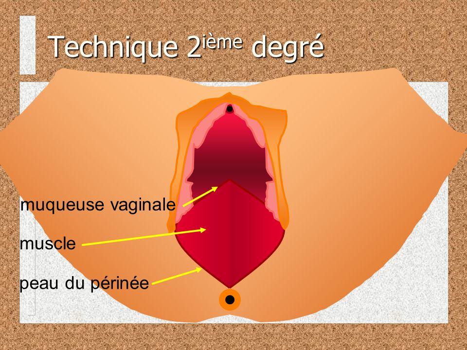 Technique 2 ième degré muqueuse vaginale peau du périnée muscle