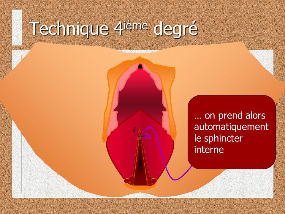 Technique 4 ième degré … on prend alors automatiquement le sphincter interne