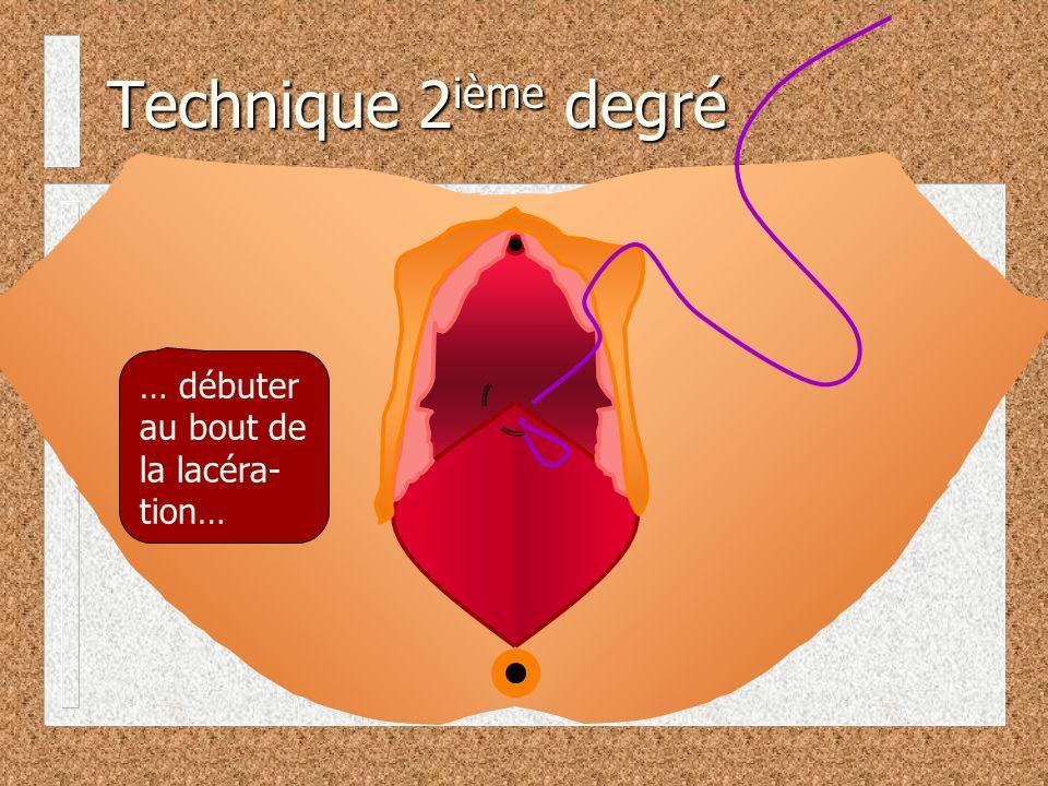 … débuter au bout de la lacéra- tion… Technique 2 ième degré