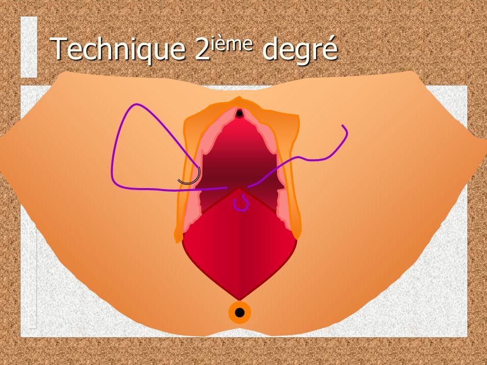 Technique 2 ième degré