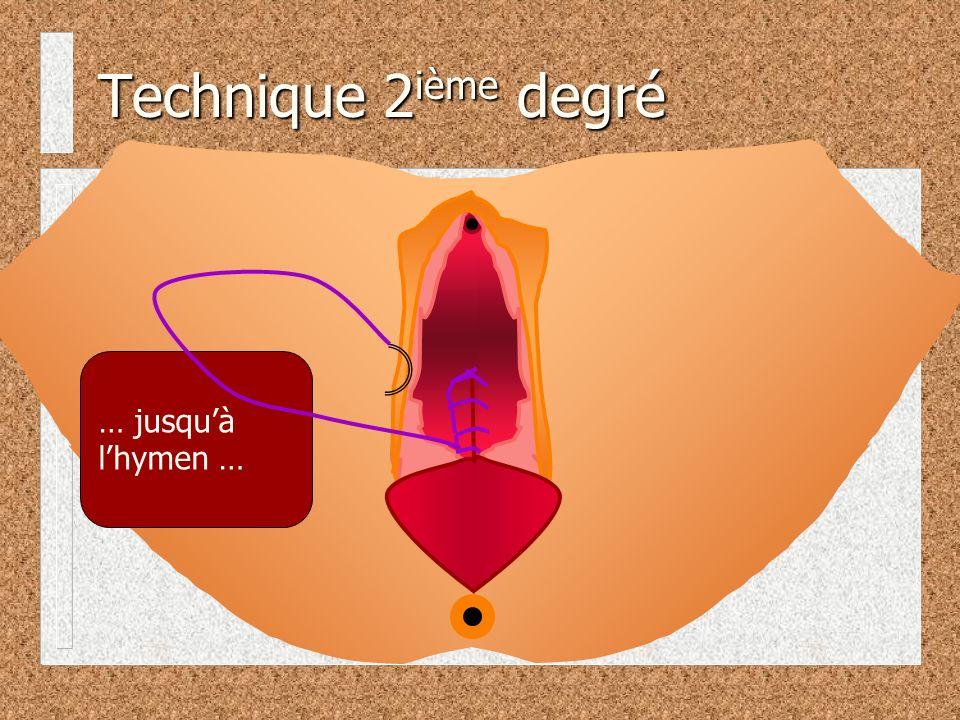 … jusquà lhymen … Technique 2 ième degré