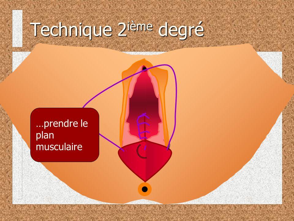 Technique 2 ième degré …prendre le plan musculaire