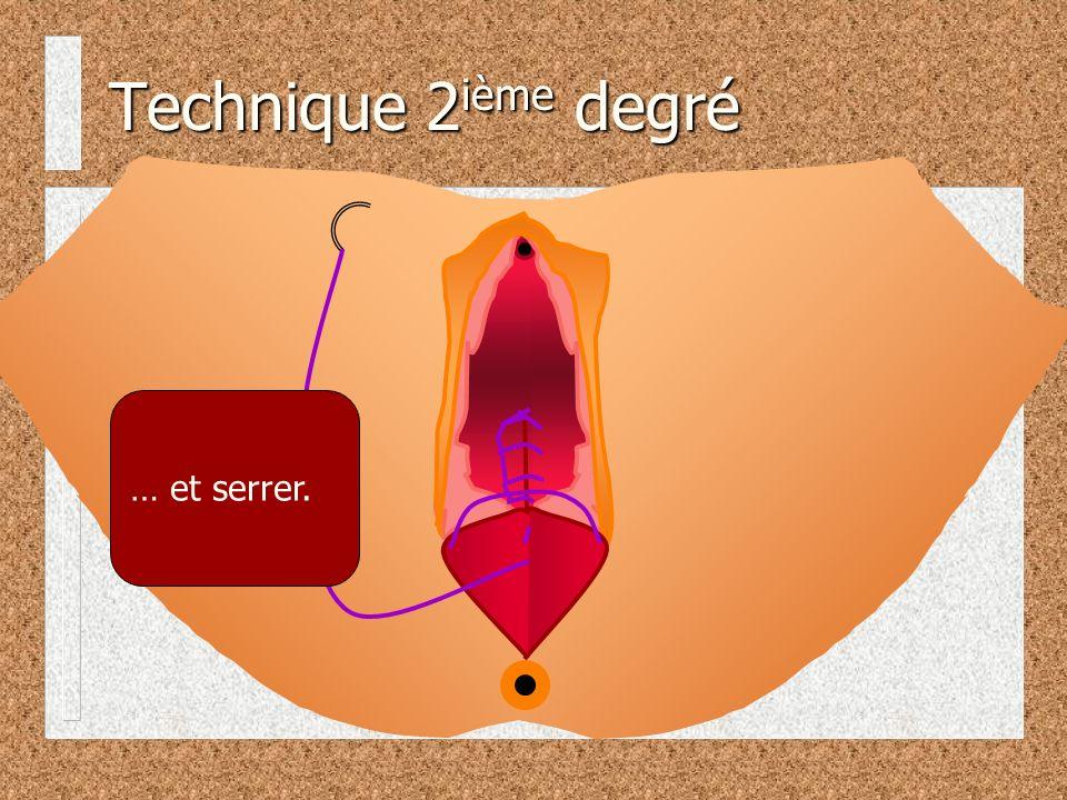 Technique 2 ième degré … et serrer.