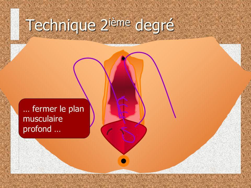 Technique 2 ième degré … fermer le plan musculaire profond …