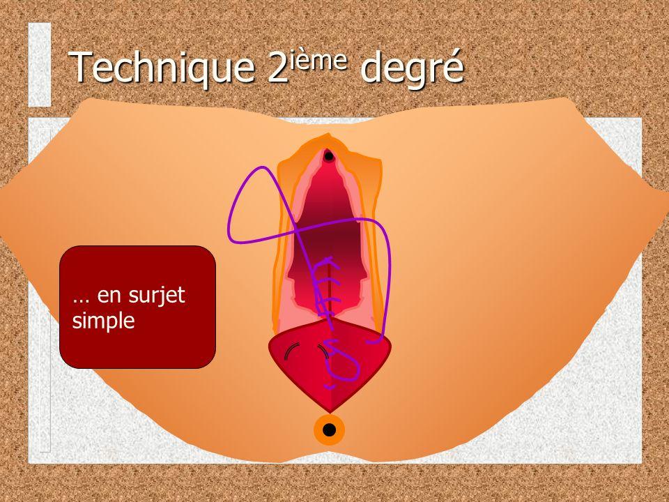 … en surjet simple Technique 2 ième degré