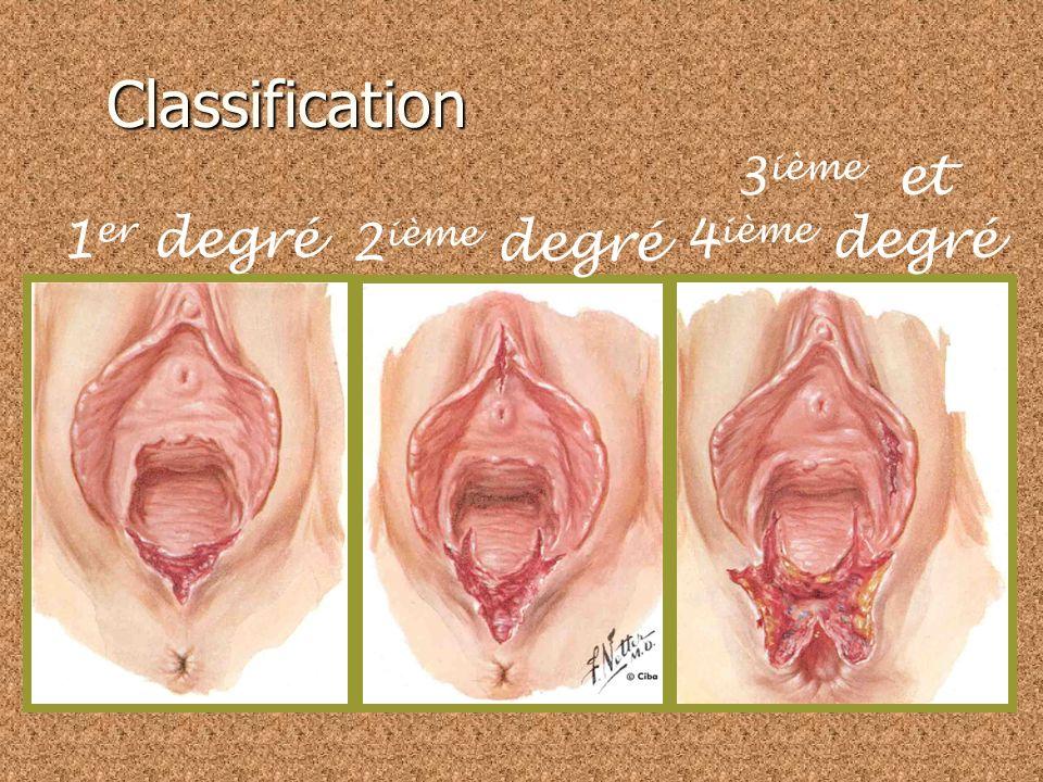 Classification 1 er degré muqueuse vaginale peau du périnée pas de muscle