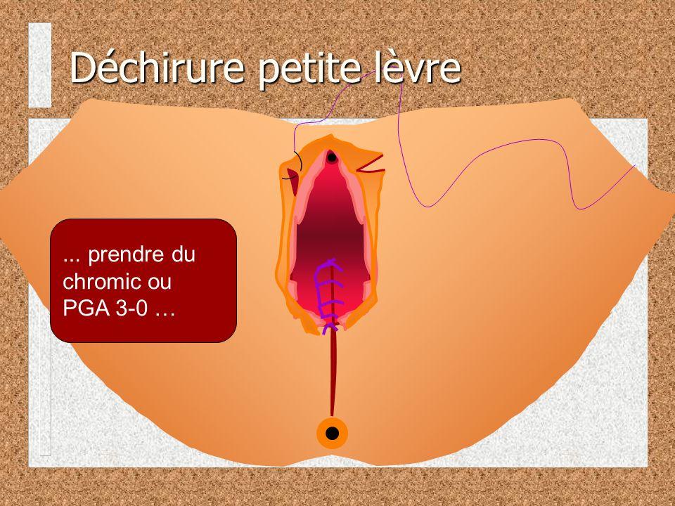 … prendre du chromic ou PGA 3-0 … Déchirure petite lèvre