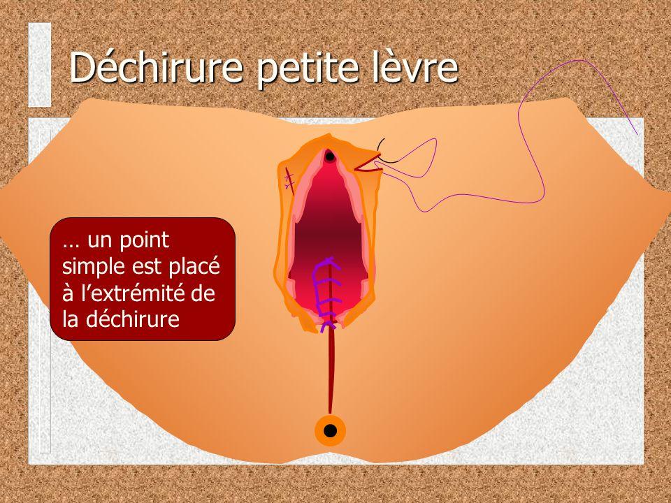 … un point simple est placé à lextrémité de la déchirure Déchirure petite lèvre
