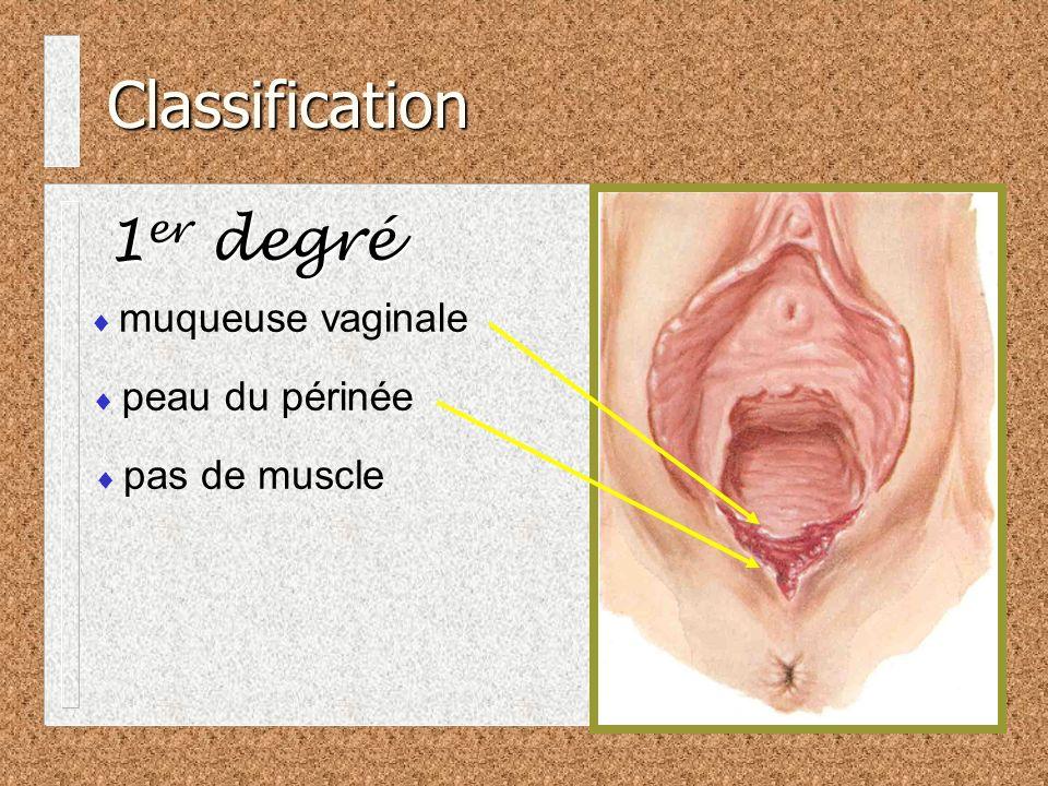 Classification 2 ième degré muscles superficiels du périnée (transverse) la capsule intacte du sphincter est souvent visible