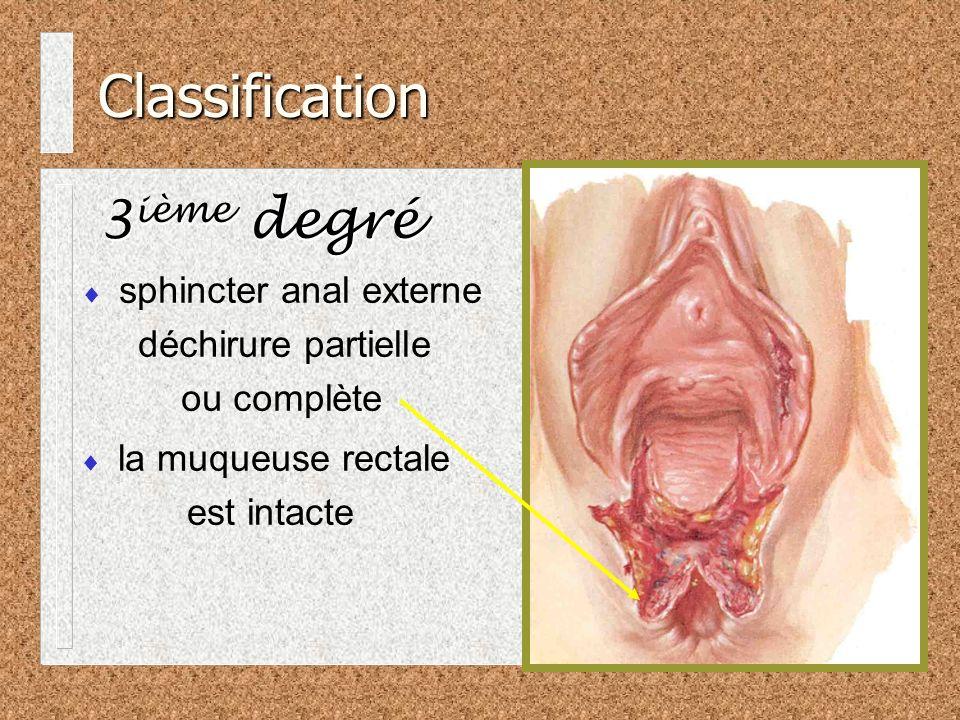Classification 3 ième degré sphincter anal externe déchirure partielle ou complète la muqueuse rectale est intacte