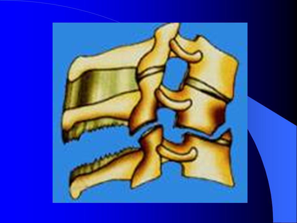 4-Les problèmes urinaires Choc spinal : vessie en rétention – Sondage à demeure système clos – Surveillance – Hygiène rigoureuse – ECBU réguliers – Hydratation 2l par jour – Éducation,problème du sondage intermitent