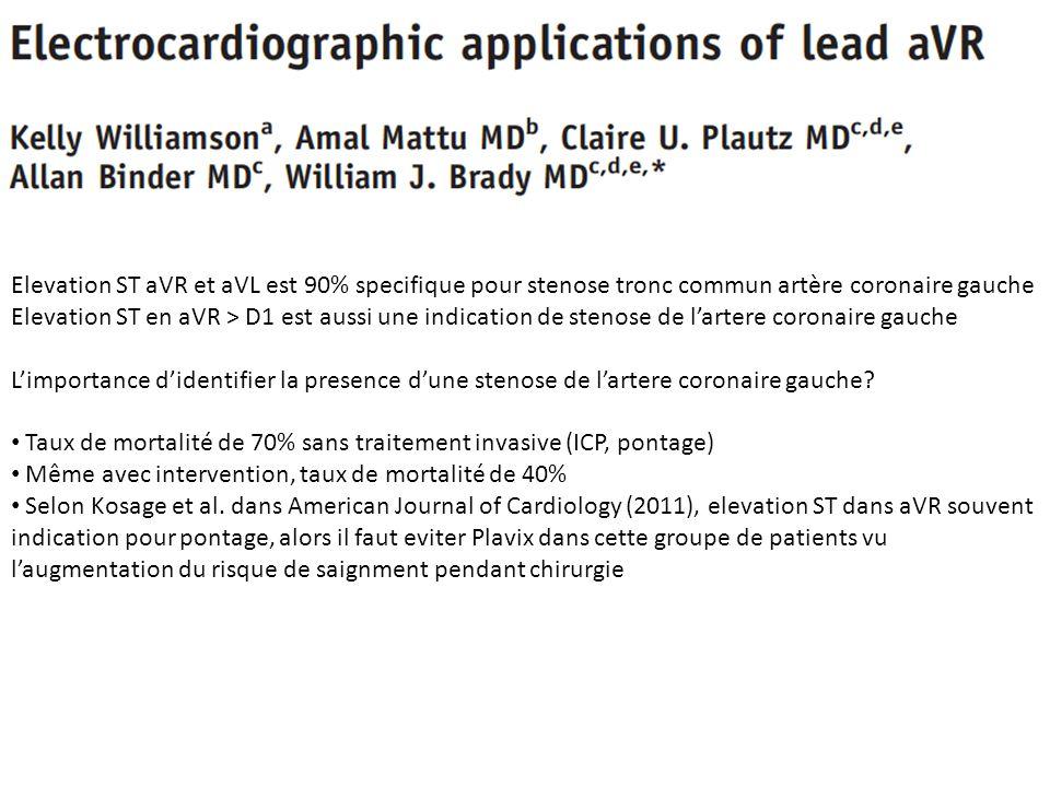 Elevation ST aVR et aVL est 90% specifique pour stenose tronc commun artère coronaire gauche Elevation ST en aVR > D1 est aussi une indication de sten