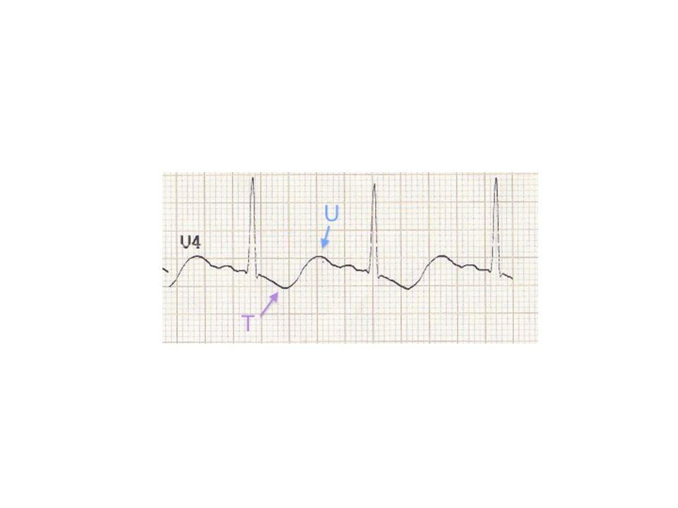 Pt présente avec brûlement, nausé et des rots: ECG normale?