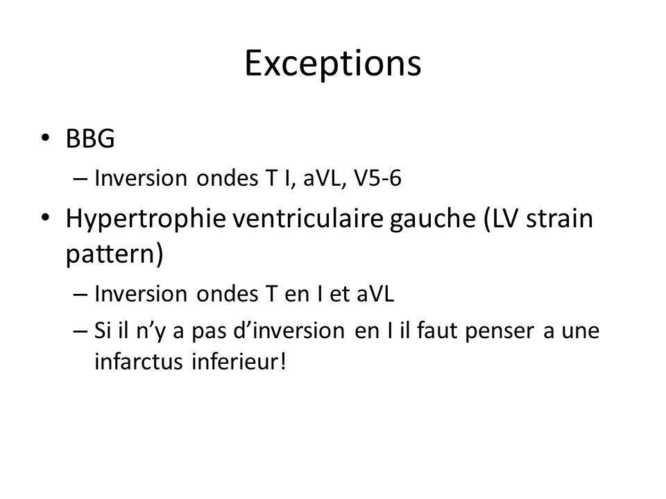 Exceptions BBG – Inversion ondes T I, aVL, V5-6 Hypertrophie ventriculaire gauche (LV strain pattern) – Inversion ondes T en I et aVL – Si il ny a pas