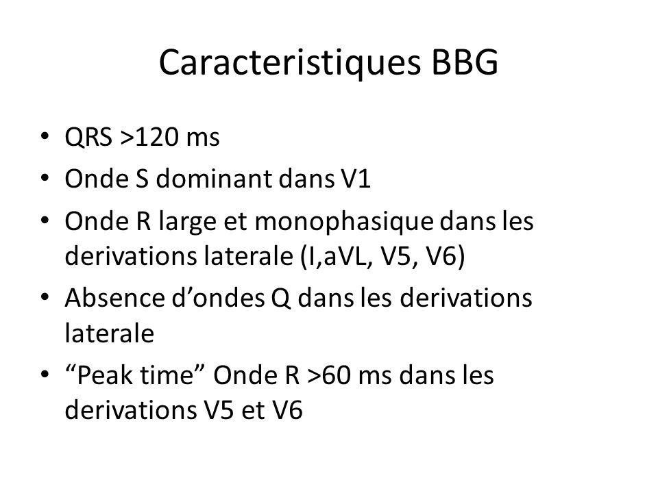 Caracteristiques BBG QRS >120 ms Onde S dominant dans V1 Onde R large et monophasique dans les derivations laterale (I,aVL, V5, V6) Absence dondes Q d