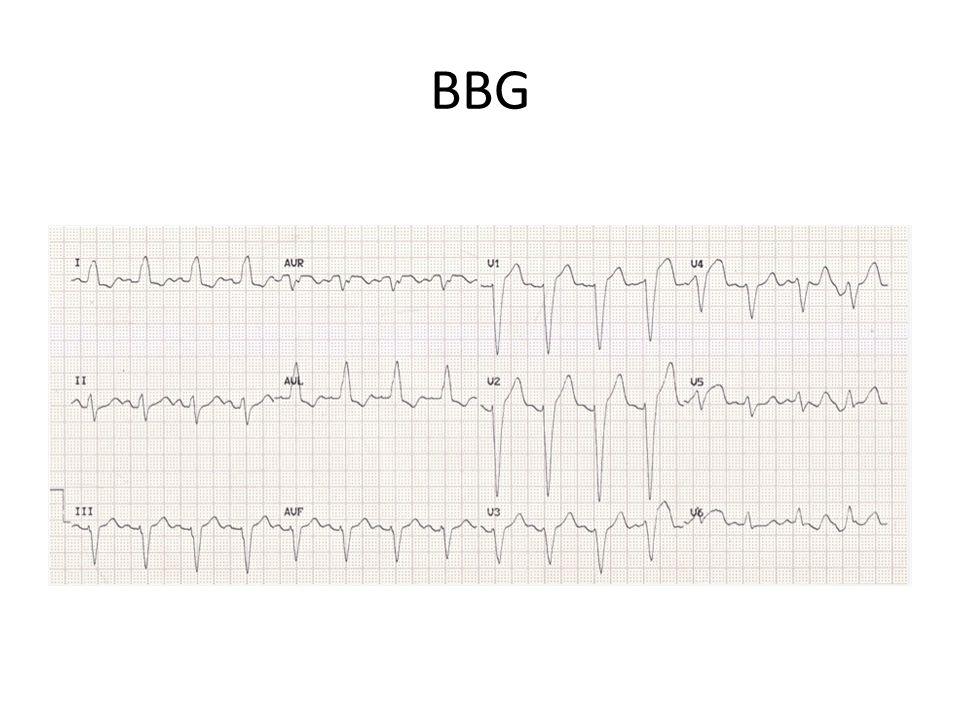 Analyze de 892 pts avec nouveau BBG entre juillet 2004-aout 2009 1/3 des pts avait une occlusion 1/3 des pts dx cardiaque non-ischemique (ex: ICA) 25% navait pas dx cardiaque Alors, pts avec nouveau BBG, faux positif dans 2/3 des cas = angiographie inutile