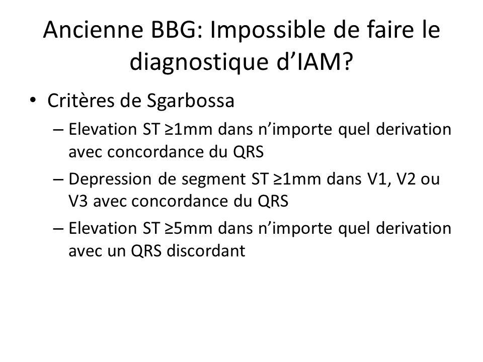 Ancienne BBG: Impossible de faire le diagnostique dIAM? Critères de Sgarbossa – Elevation ST 1mm dans nimporte quel derivation avec concordance du QRS