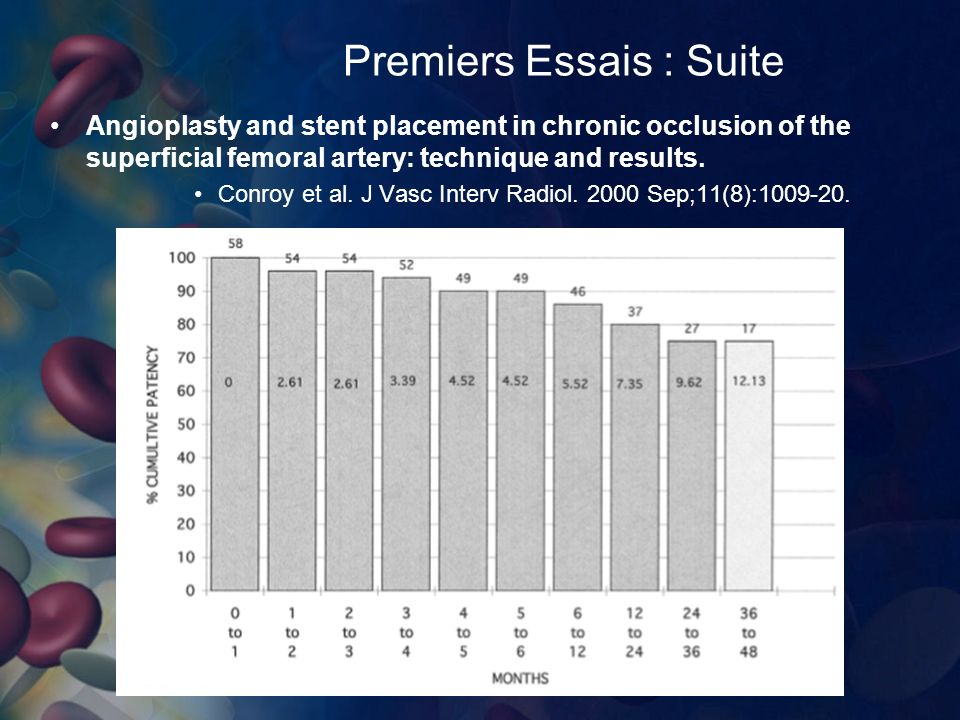 Premiers Essais : Suite Angioplasty and stent placement in chronic occlusion of the superficial femoral artery: technique and results.