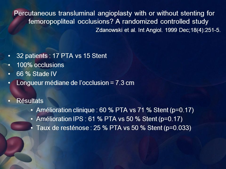 Percutaneous transluminal angioplasty with or without stenting for femoropopliteal occlusions? A randomized controlled study Zdanowski et al. Int Angi