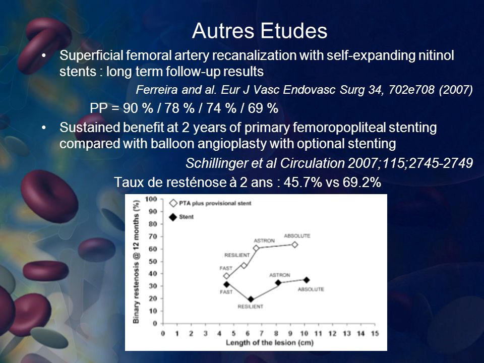 Autres Etudes Superficial femoral artery recanalization with self-expanding nitinol stents : long term follow-up results Ferreira and al.