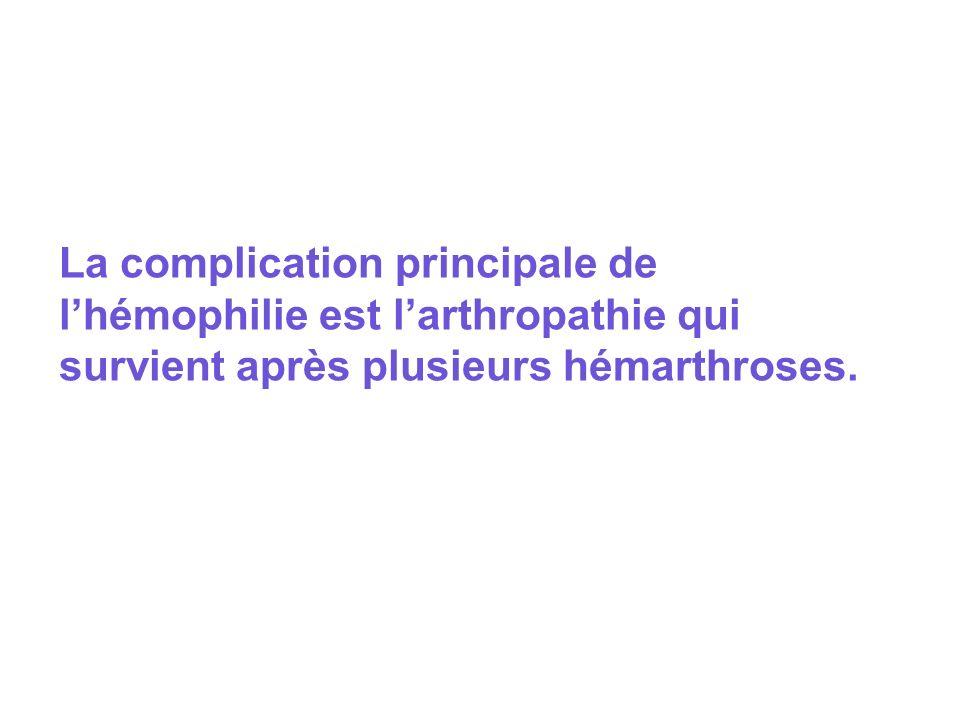La complication principale de lhémophilie est larthropathie qui survient après plusieurs hémarthroses.