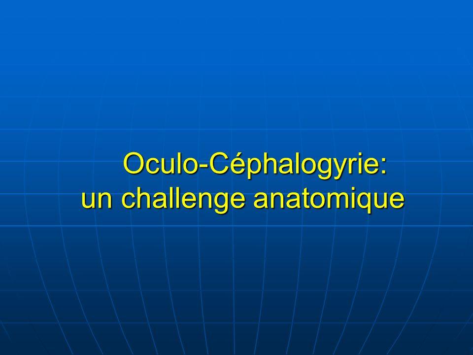 Oculo-Céphalogyrie: un challenge anatomique Oculo-Céphalogyrie: un challenge anatomique