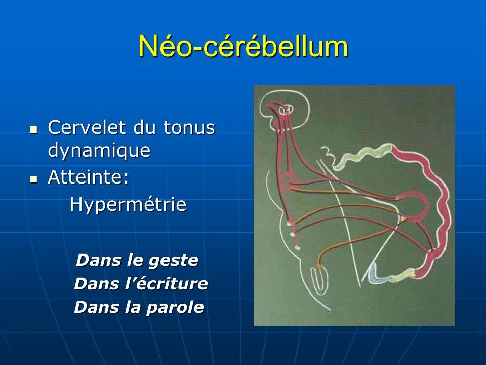 Néo-cérébellum Cervelet du tonus dynamique Cervelet du tonus dynamique Atteinte: Atteinte: Hypermétrie Hypermétrie Dans le geste Dans le geste Dans lé